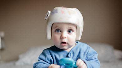 cuisiner pour bebe tête plate utile le port du casque