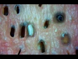 Oily Nasty Pores and Skin Under the Microscope - Cysts ...