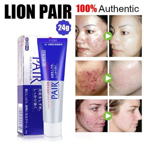 jual lion pair acne cream gr domidoki store