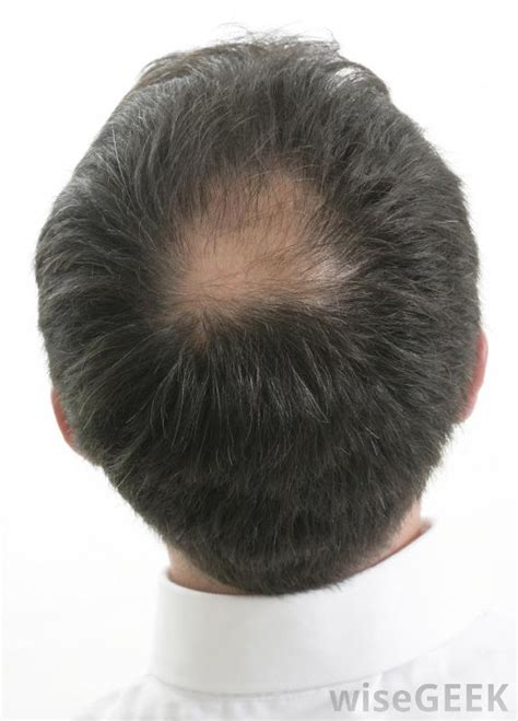 bald spot hair style s hair guidelines to hiding your real age 4587