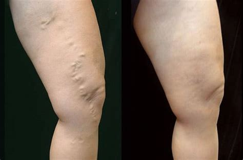 Best Varicose Vein Treatment In San Diego  The Secret. Locksmith In Waxahachie Tx Drip Common Stock. Drug Defense Attorney Houston. Medical Temperature Monitoring. Storage Units In Bristol Ct Junk Removal Md