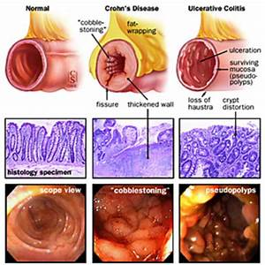 Ulcerative Colitis and Crohn's Disease | Nursing ...