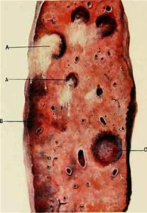 Eruptions Of The Acute Specific Diseases  Variola Equina