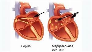 Мерцательная аритмия с гипертонией лечение
