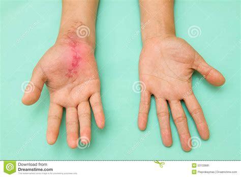 corte en la mano herida de la cicatriz en la mano hinchada e inflamada
