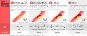 Sirens To Scrubs  Acute Coronary Syndromes  Part One