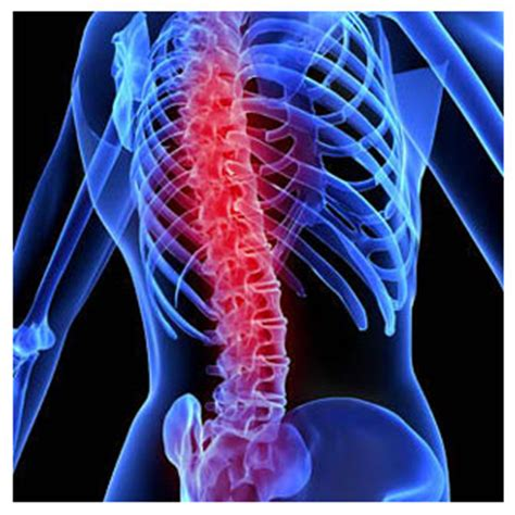 spinal cord injury roanoke spinal cord injuries attorney