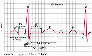 Image Gallery ecg labeled