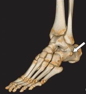 Peroneal Tendon Subluxation & Dislocation - Foot & Ankle ...