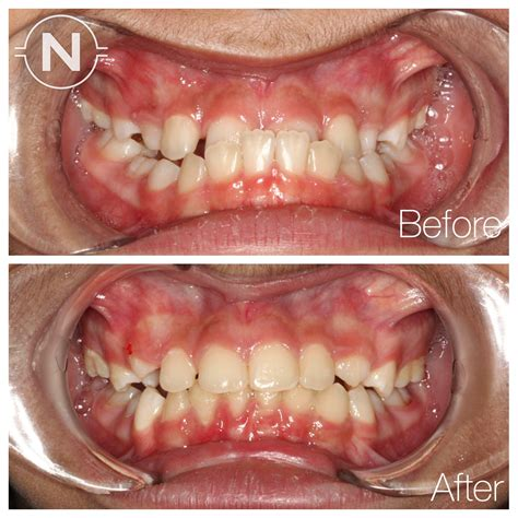 Dramatic Improvement After Early Orthodontic Treatment. Baylor School Of Dentistry Html Email Button. Evans Plumbing And Heating Target Wareham Ma. Abington Dixon School Of Nursing. Dentist In Huntington Beach Mazda 6 Sunroof