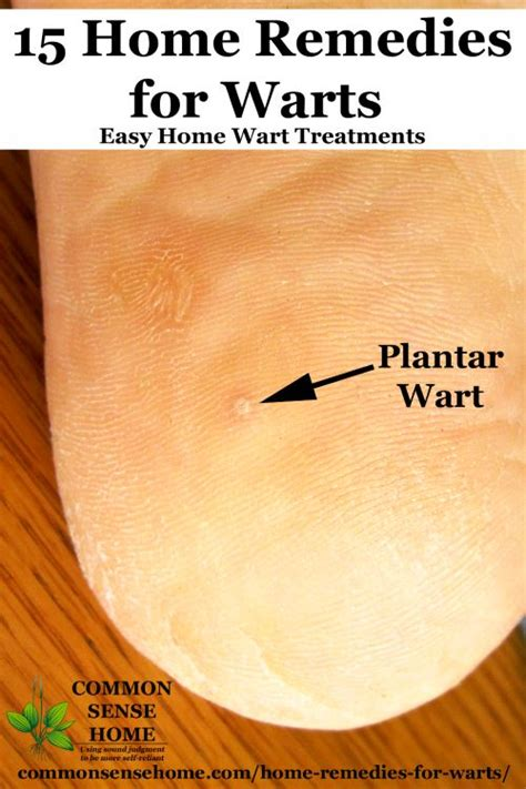 planters wart on heel 15 home remedies for warts easy home wart treatments