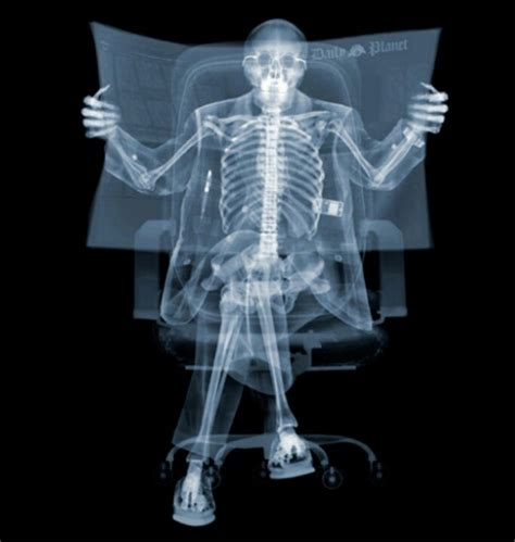 ray veasey nick rays cool funny xrays weird radiografias skeleton awesome sinar amazing uses artist tudo vision raio mesin idea