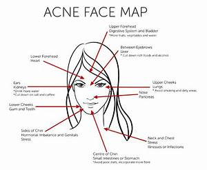 What Your Acne Reveals About Your Health  U2013 Collective