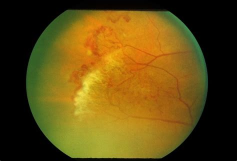 Sickle Cell Sea Fan Retinopathy - Retina Image Bank