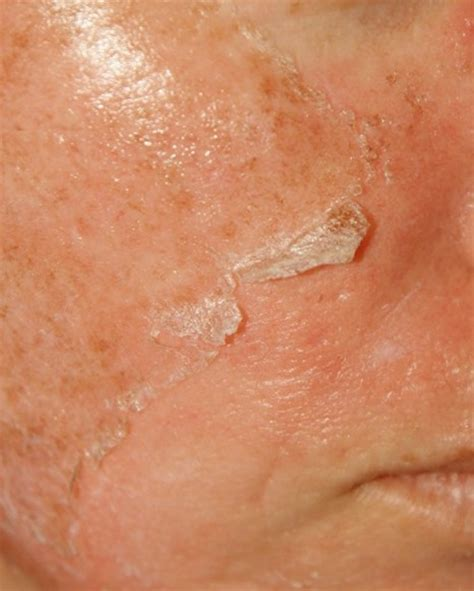 flaky skin symptoms treatment  pictures