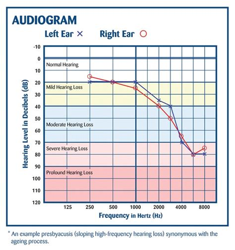 hear at home mobile hearing clinic ltd understanding your audiogram