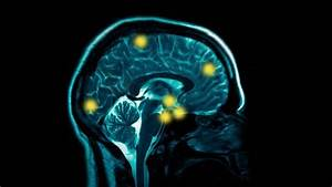 Game And Internet Addiction Causes Brain Damage Study