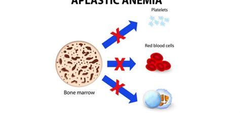 aplastic anemia nursing crib