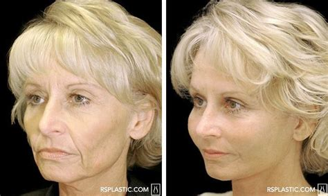 Before And After Photo Of A Face Lift Procedure Performed By Dallas Plastic Surgeon Dr. Plastic Pallet Standards Celebrity Surgery Before And After Gallery Small Trash Can Liners 3 Drawer Storage Unit Australia 2 How To Repair Hard Fuel Line Resin Codes Nitro Fuzer Nitrogen Welder Flowers The Front Bottoms