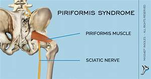 What Is Piriformis Syndrome