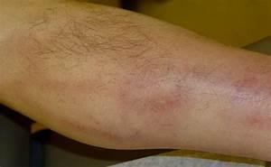Thrombophlebitis. Causes, symptoms, treatment Thrombophlebitis  Superficial