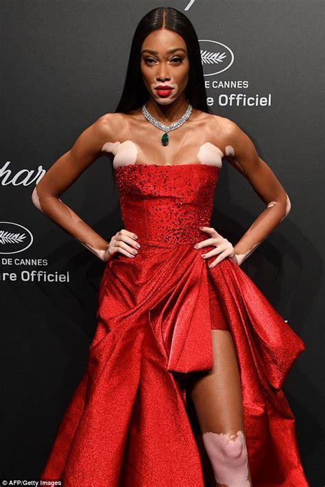 Cannes 2017: Winnie Harlow flaunts figure at Chopard bash ...