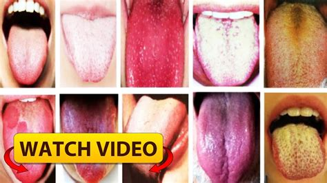 how the colour of your tongue reveals your health