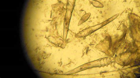 Demodex Mange Mites From A Skin Scraping