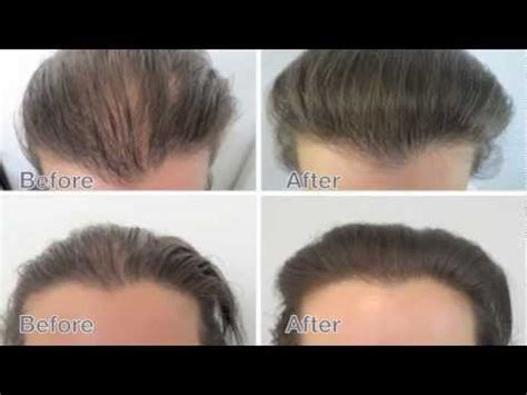 Female Hair Loss Treatment. Amazing results before and