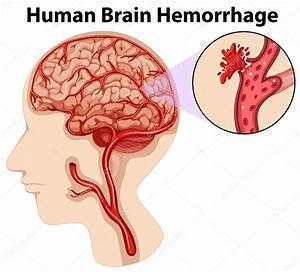 Diagram Van Menselijke Hersenbloeding  U2014 Stockvector