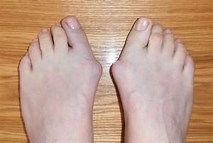 Чем снять боль при артрозе коленных суставов