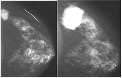 Best Mammography Questions And Answers