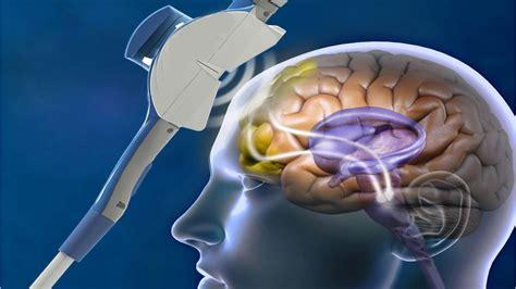 transcranial magnetic stimulation  san diego solara