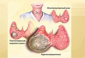 Аденома щитовидной железы лечение травами