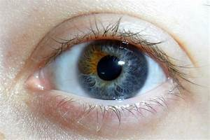The soul is bone - Sectoral/Partial heterochromia is an ...
