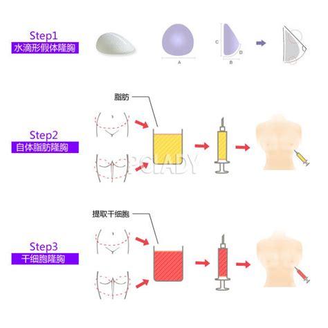 假体隆胸和自体脂肪干细胞丰胸,哪个效果好
