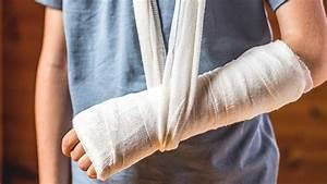 Broken Bones: Stem Cells Can Heal