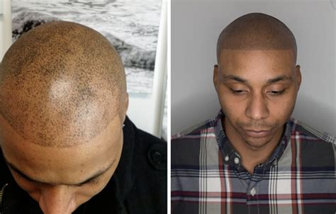 Balding barber whose horrific fake-hair tattoo described