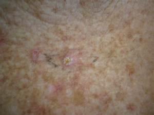 Bowen U0026 39 S Disease  Squamous Cell Carcinoma In Situ