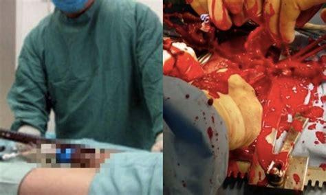 Doctors Cut Into Man's Penis For Enlargement Surgery, Don