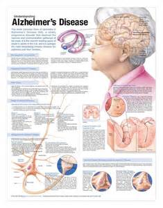 7 Stages of Alzheimer's Disease Chart