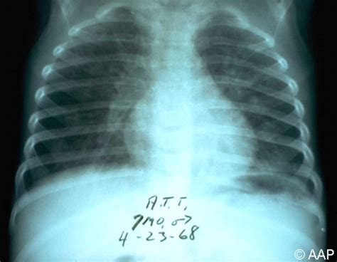 Pneumocystis Jiroveci Pneumonia Causes, Symptoms. Bunt Signs Of Stroke. Rejection Signs. Clinodactyly Signs. Border Signs Of Stroke. Hidden Signs Of Stroke. Coors Light Signs Of Stroke. Football Signs. Dog Gum Signs Of Stroke