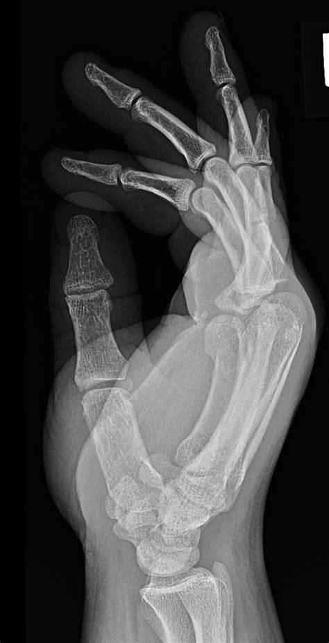 fracture boxer metacarpal neck 5th radiopaedia wikidoc consistent