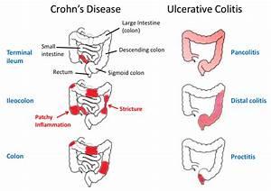 Inflammatory Bowel Disease Ibd  Tusom