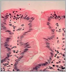 What Is Barrett U0026 39 S Esophagus