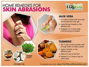 Home Remedies for Skin Abrasions | Top 10 Home Remedies