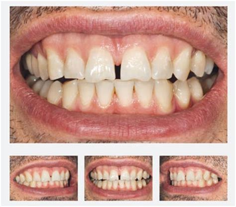 tschackert veneer no prep veneers in frankfurt