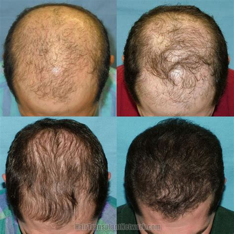 hair transplant before and after photos with the use of