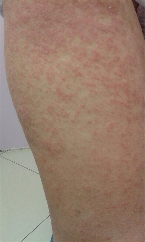 rashes expresscare guam clinic doctors  medical treatments skin problems physicals