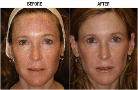 ipl-1   Zormeier Cosmetic Surgery and Longevity Center